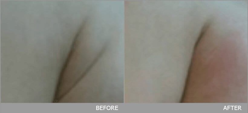 ผลการรักษา กำจัด ไขมันใต้ปีกเสื้อใน